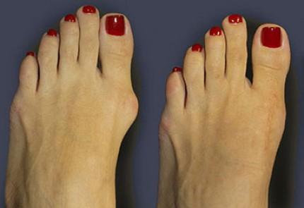 Растет и болит косточка на большом пальце ноги  причины и
